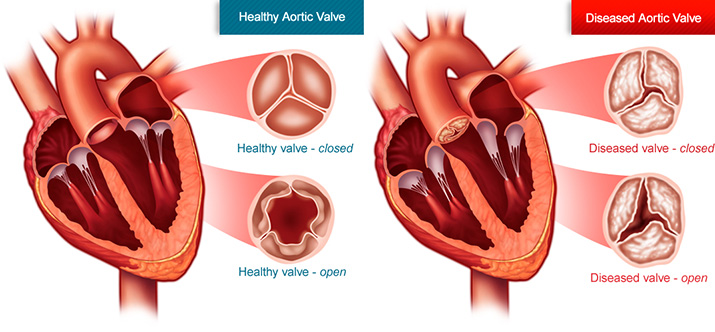 What is aortic stenosis